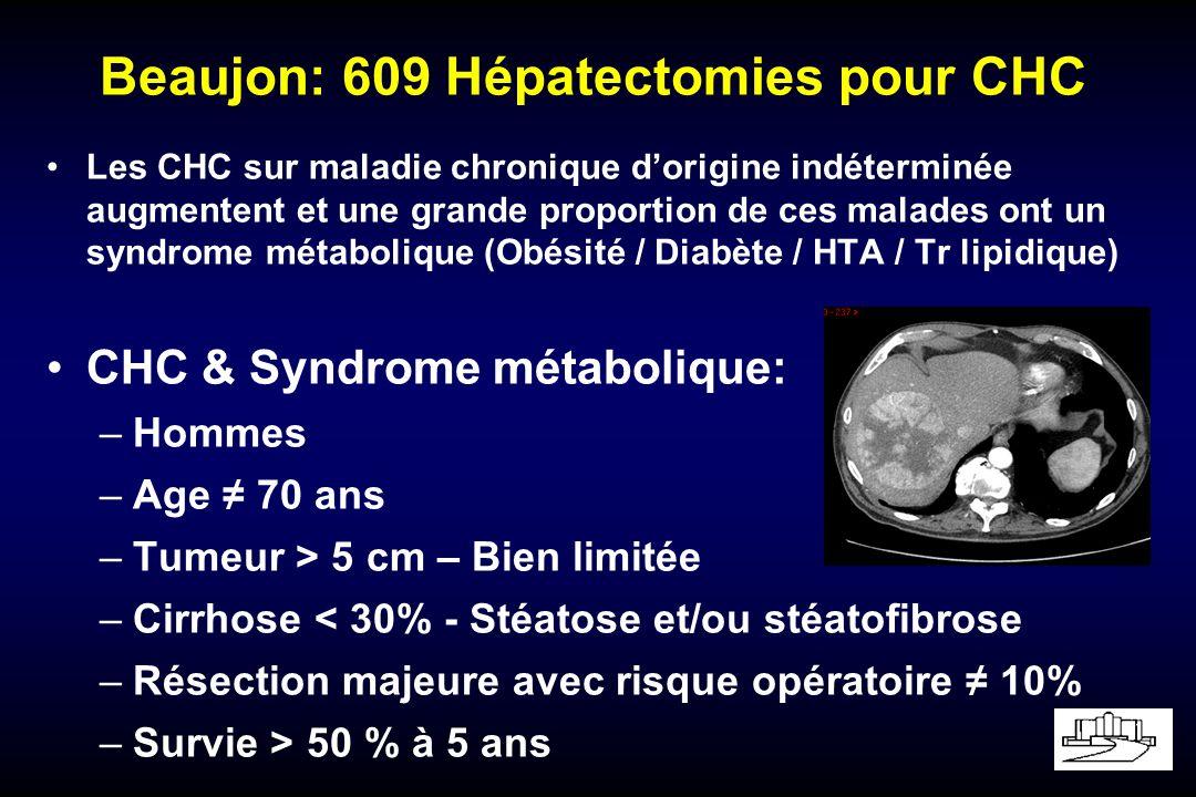 Beaujon: 609 Hépatectomies pour CHC