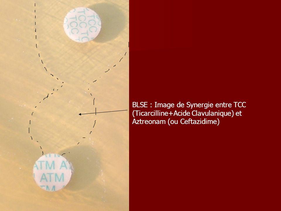 BLSE : Image de Synergie entre TCC (Ticarcilline+Acide Clavulanique) et Aztreonam (ou Ceftazidime)
