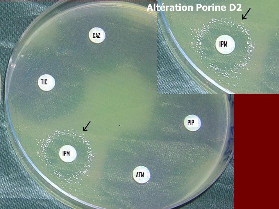 Altération Porine D2