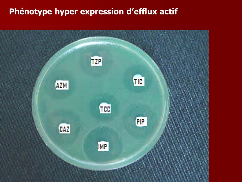 Phénotype hyper expression d'efflux actif