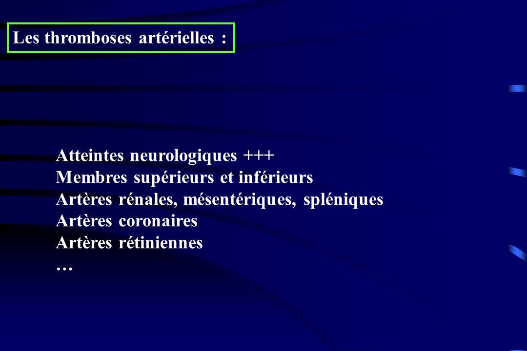 Les thromboses artérielles :