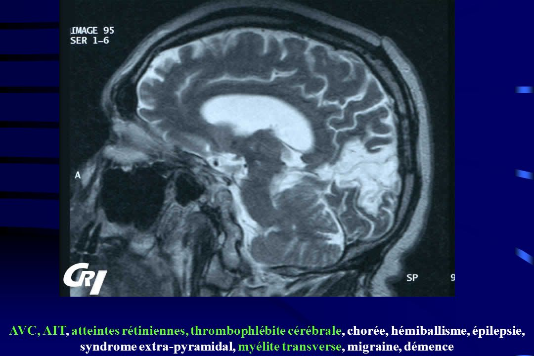 syndrome extra-pyramidal, myélite transverse, migraine, démence