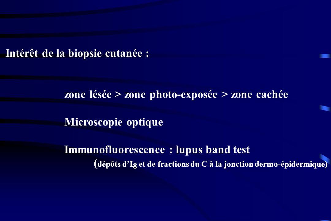 Intérêt de la biopsie cutanée :