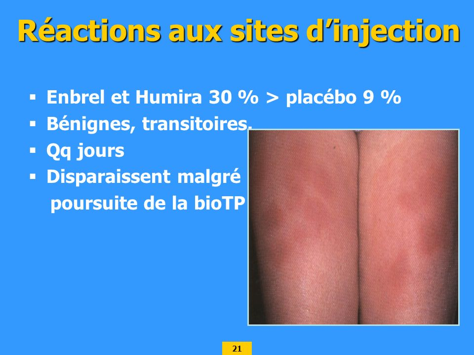 Réactions aux sites d'injection