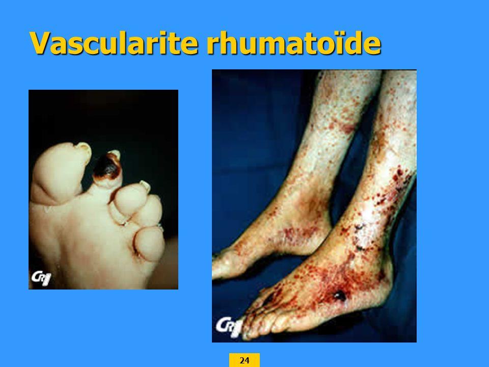Vascularite rhumatoïde
