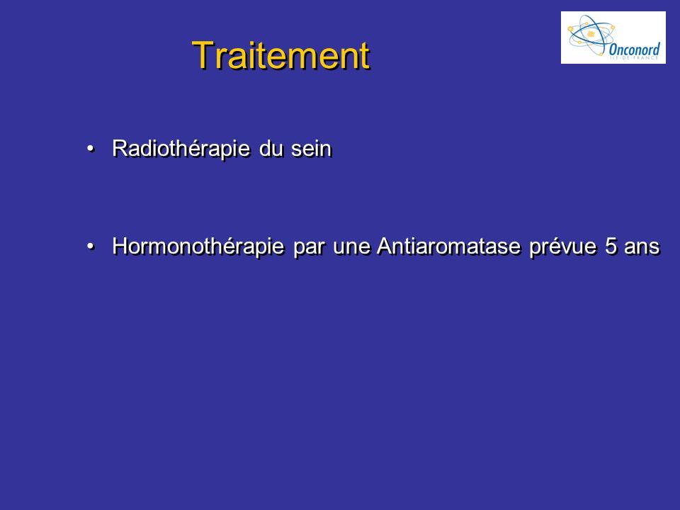 Traitement Radiothérapie du sein