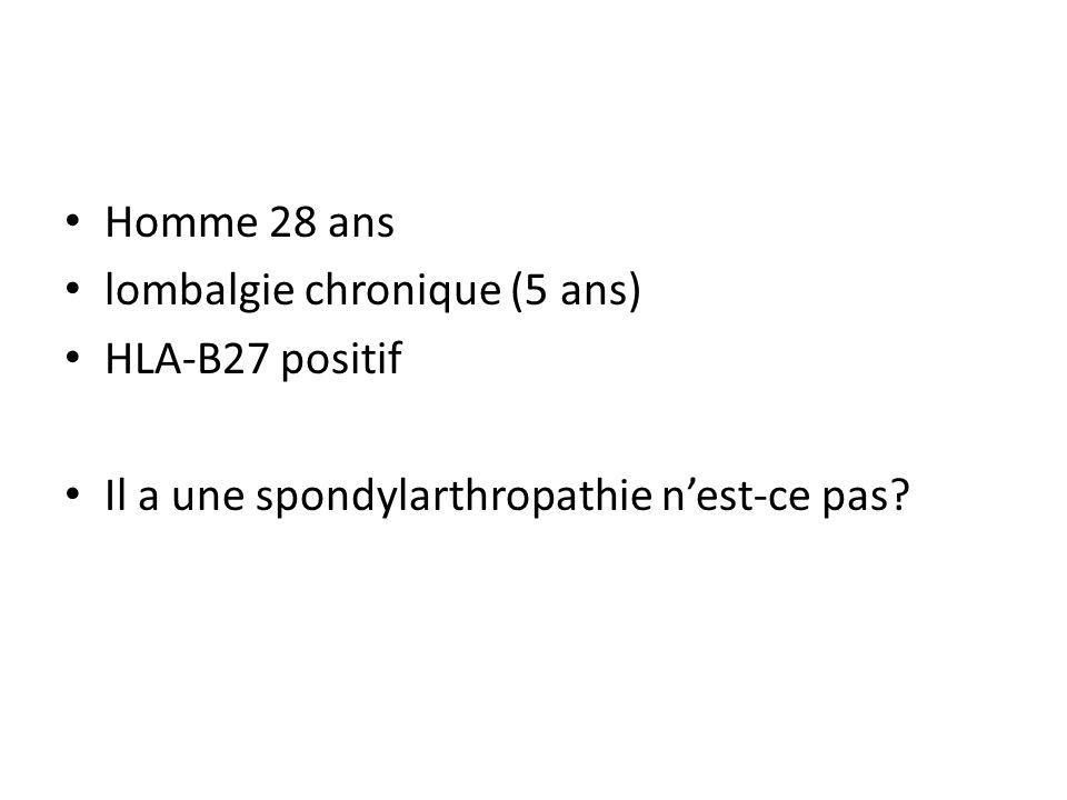 Homme 28 ans lombalgie chronique (5 ans) HLA-B27 positif Il a une spondylarthropathie n'est-ce pas