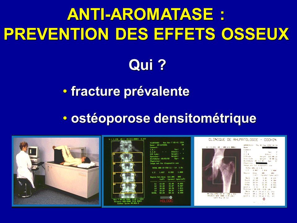 ANTI-AROMATASE : PREVENTION DES EFFETS OSSEUX