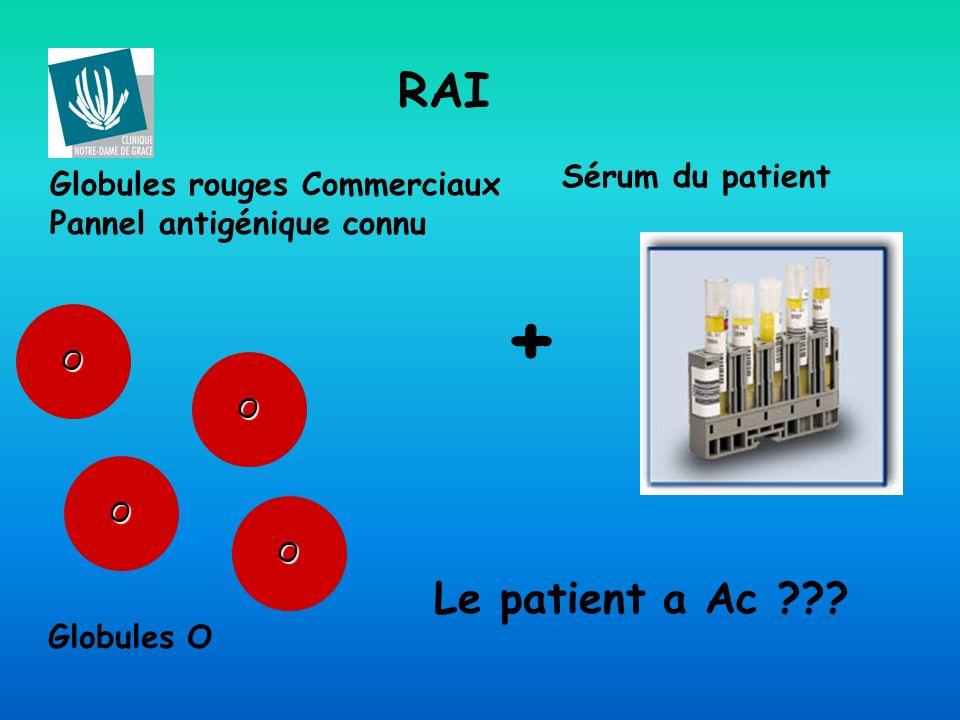 + RAI Le patient a Ac Sérum du patient