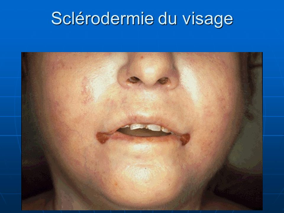 Sclérodermie du visage