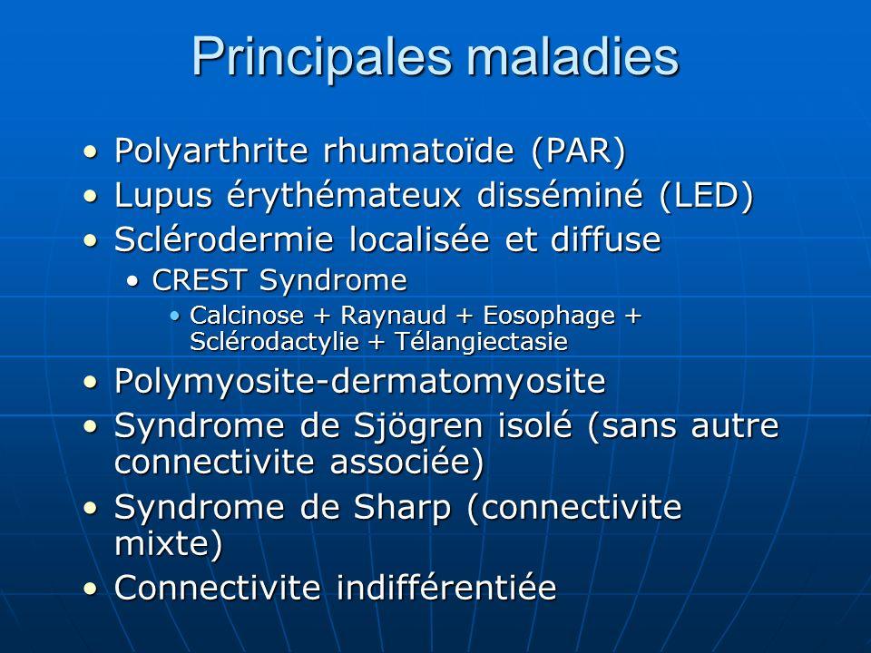 Principales maladies Polyarthrite rhumatoïde (PAR)
