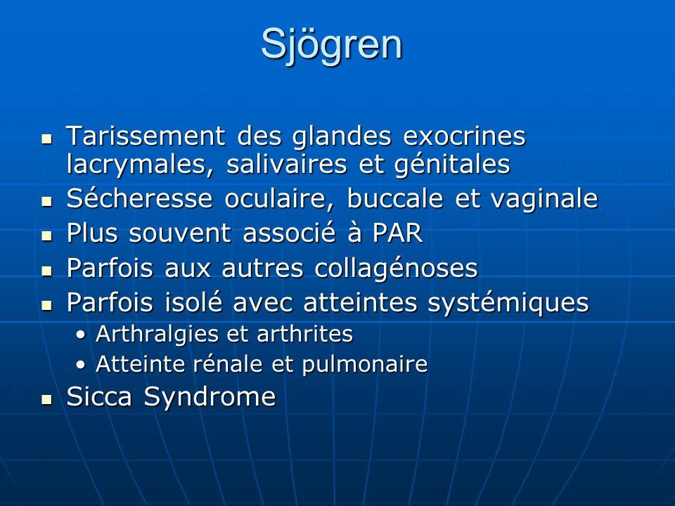 Sjögren Tarissement des glandes exocrines lacrymales, salivaires et génitales. Sécheresse oculaire, buccale et vaginale.