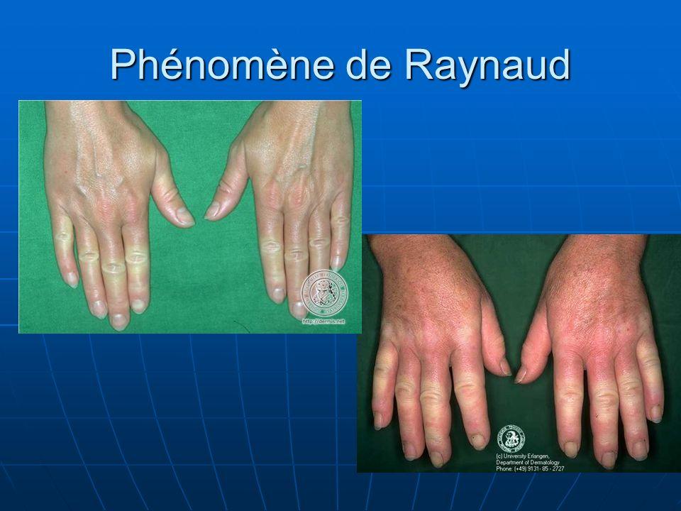 Phénomène de Raynaud