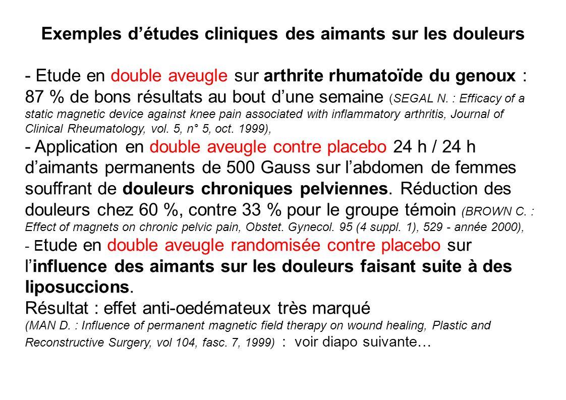 Exemples d'études cliniques des aimants sur les douleurs