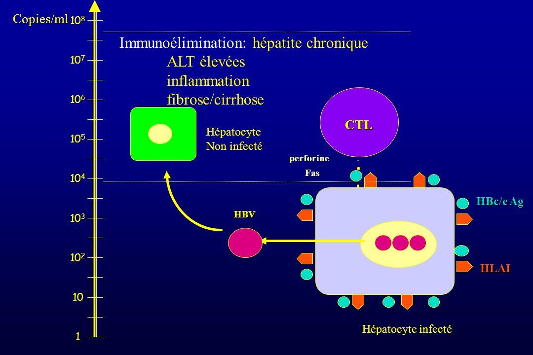 Immunoélimination: hépatite chronique ALT élevées inflammation