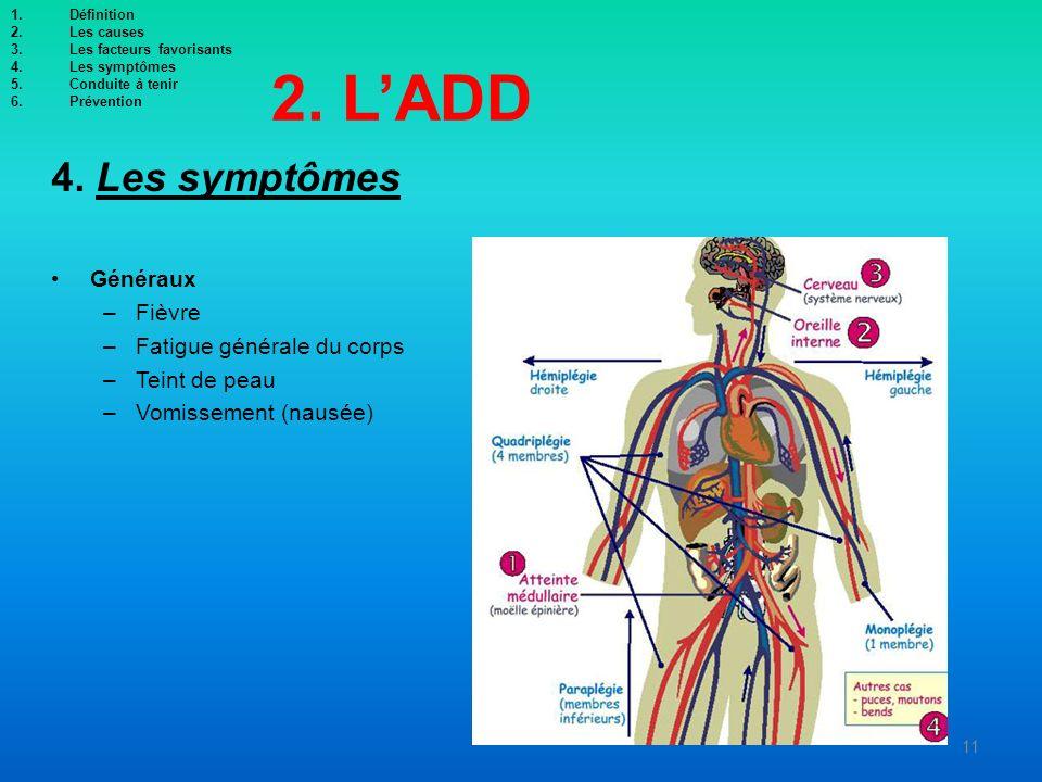 2. L'ADD 4. Les symptômes Généraux Fièvre Fatigue générale du corps