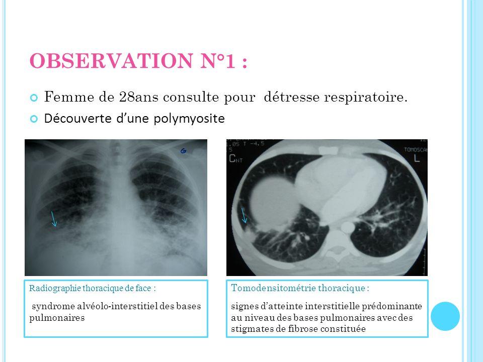OBSERVATION N°1 : Femme de 28ans consulte pour détresse respiratoire.