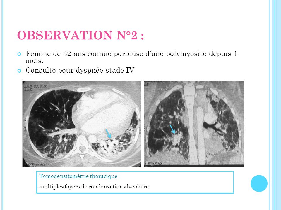 OBSERVATION N°2 : Femme de 32 ans connue porteuse d'une polymyosite depuis 1 mois. Consulte pour dyspnée stade IV.