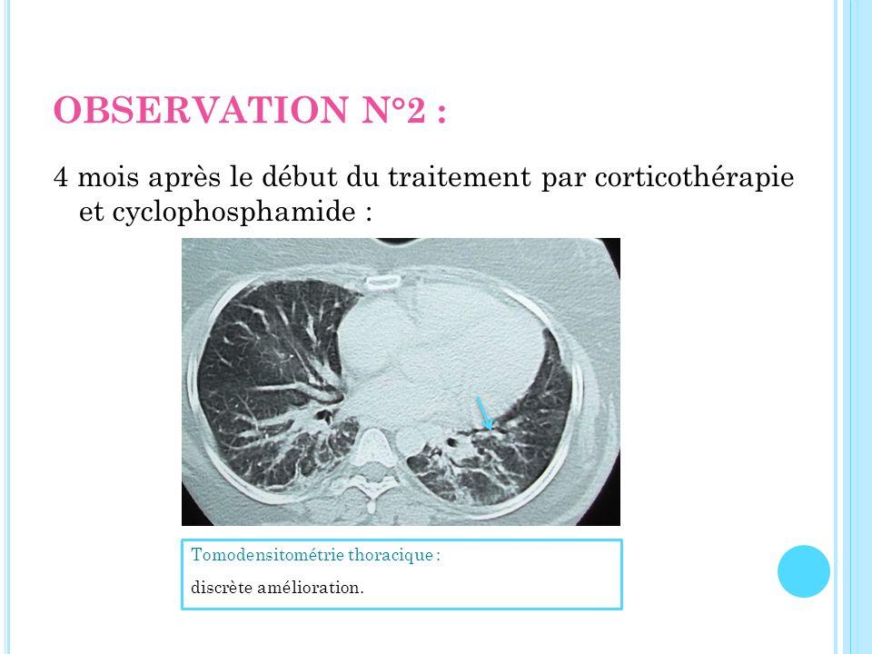 OBSERVATION N°2 : 4 mois après le début du traitement par corticothérapie et cyclophosphamide : Tomodensitométrie thoracique :
