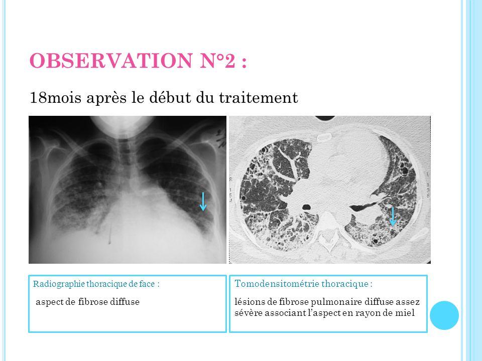 OBSERVATION N°2 : 18mois après le début du traitement