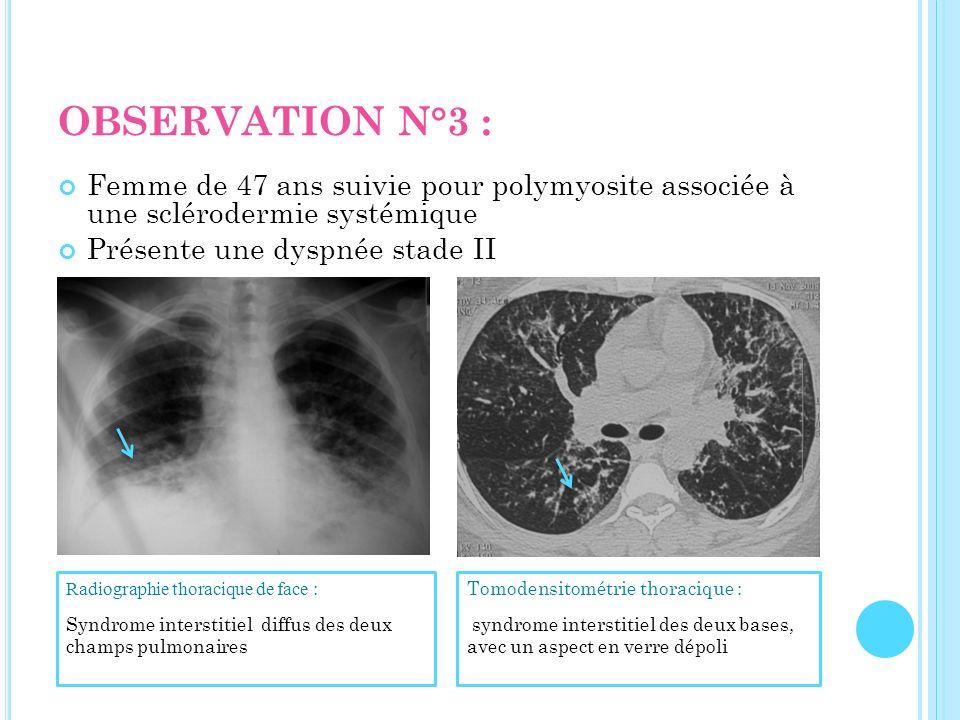 OBSERVATION N°3 : Femme de 47 ans suivie pour polymyosite associée à une sclérodermie systémique. Présente une dyspnée stade II.