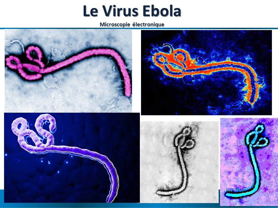 Le Virus Ebola Microscopie électronique