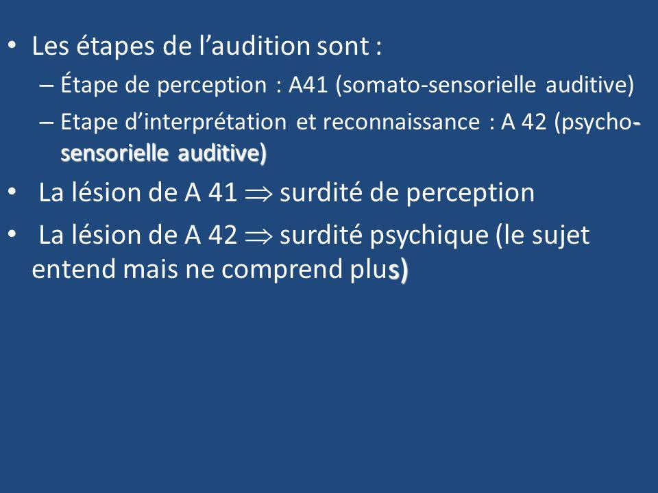 Les étapes de l'audition sont :