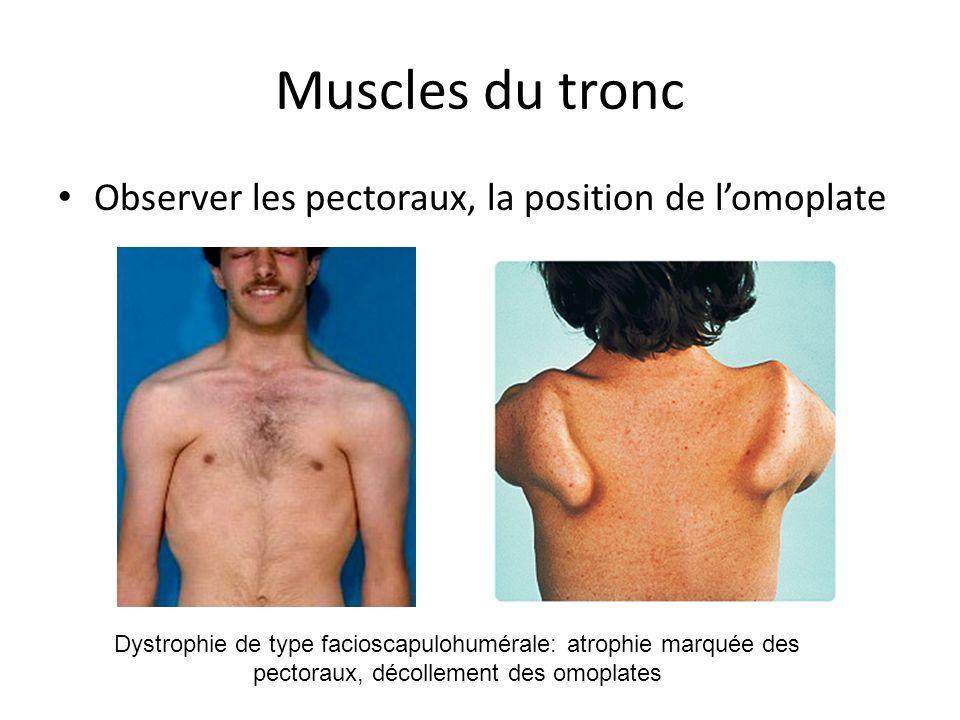 Muscles du tronc Observer les pectoraux, la position de l'omoplate