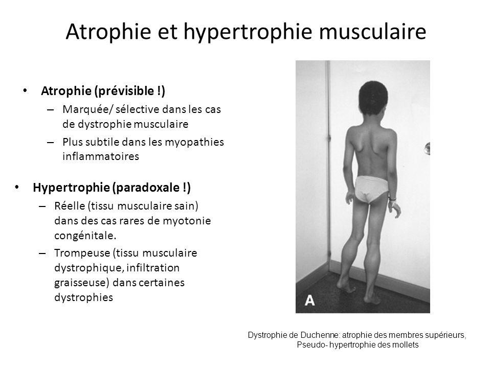 Atrophie et hypertrophie musculaire
