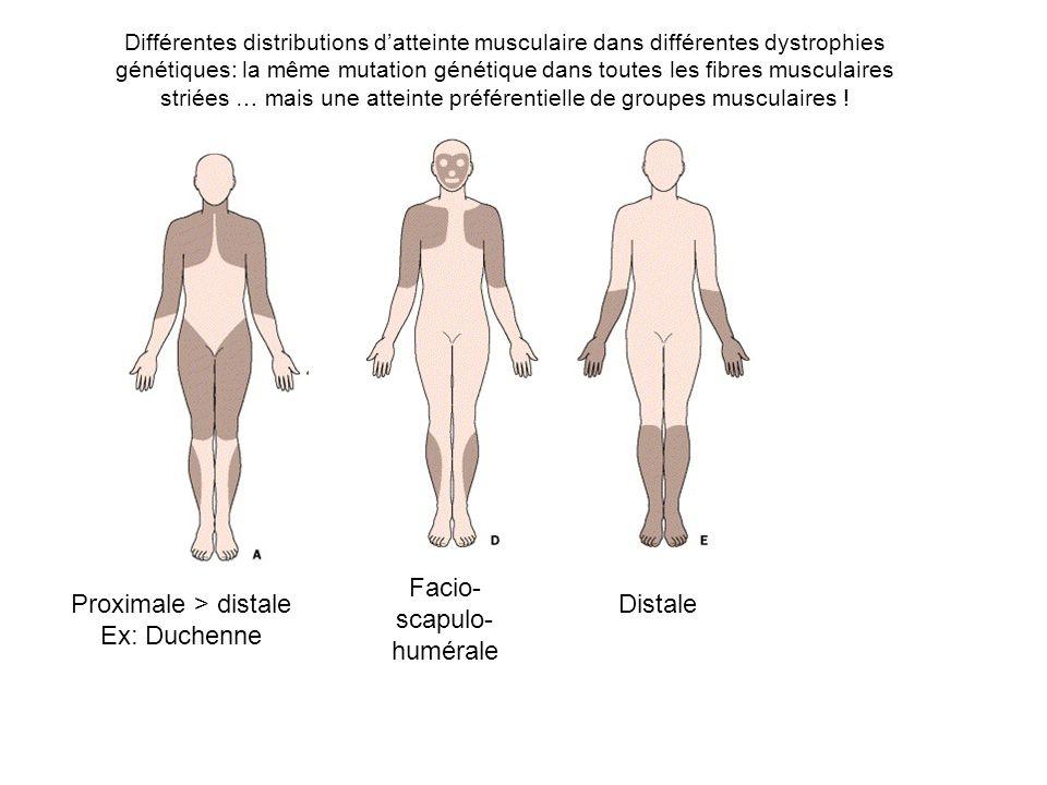 Facio-scapulo-humérale Proximale > distale Ex: Duchenne Distale