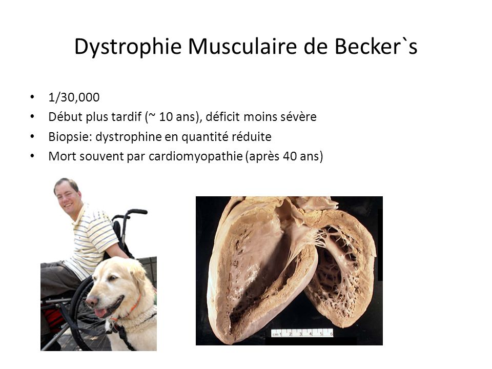 Dystrophie Musculaire de Becker`s