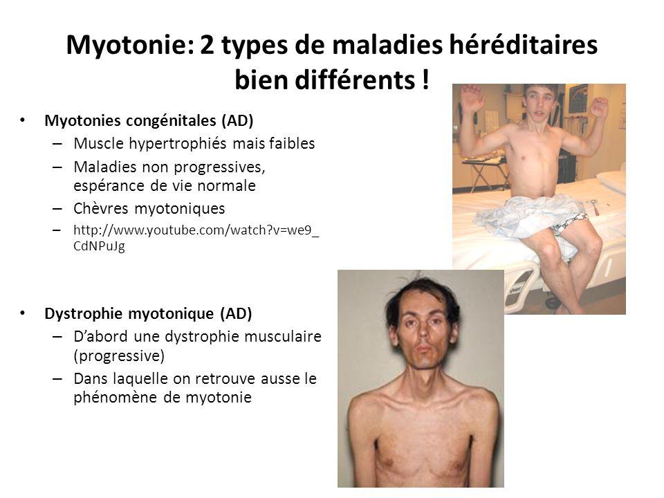 Myotonie: 2 types de maladies héréditaires bien différents !