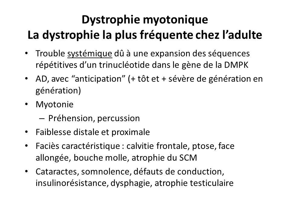 Dystrophie myotonique La dystrophie la plus fréquente chez l'adulte