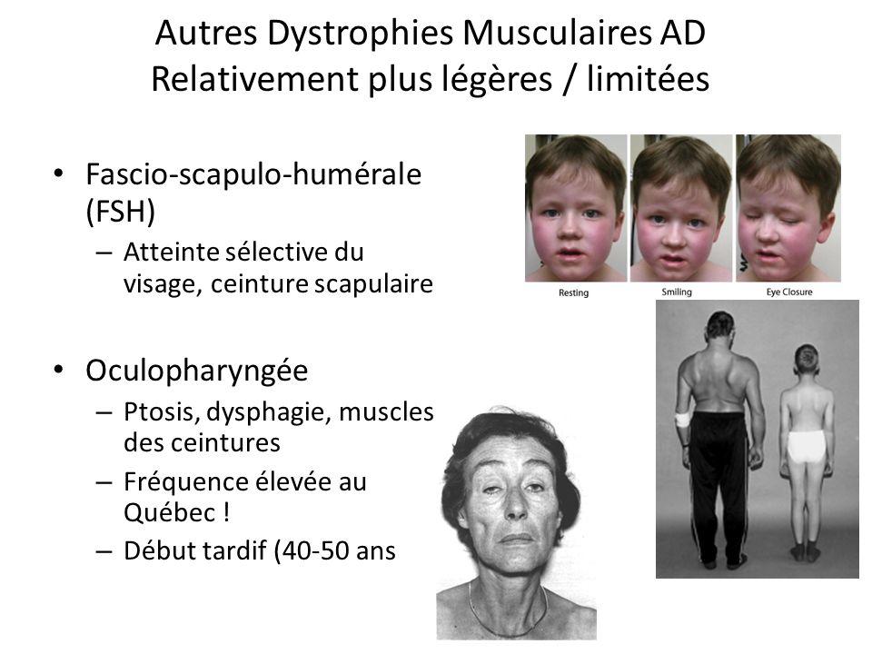 Autres Dystrophies Musculaires AD Relativement plus légères / limitées