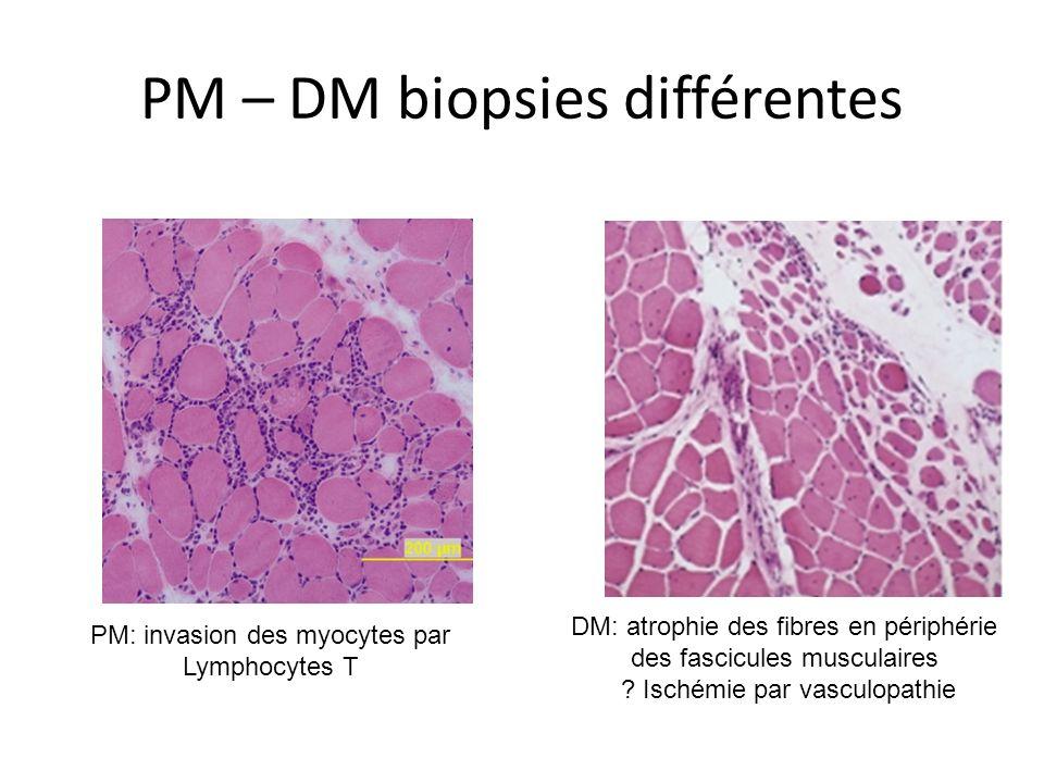 PM – DM biopsies différentes