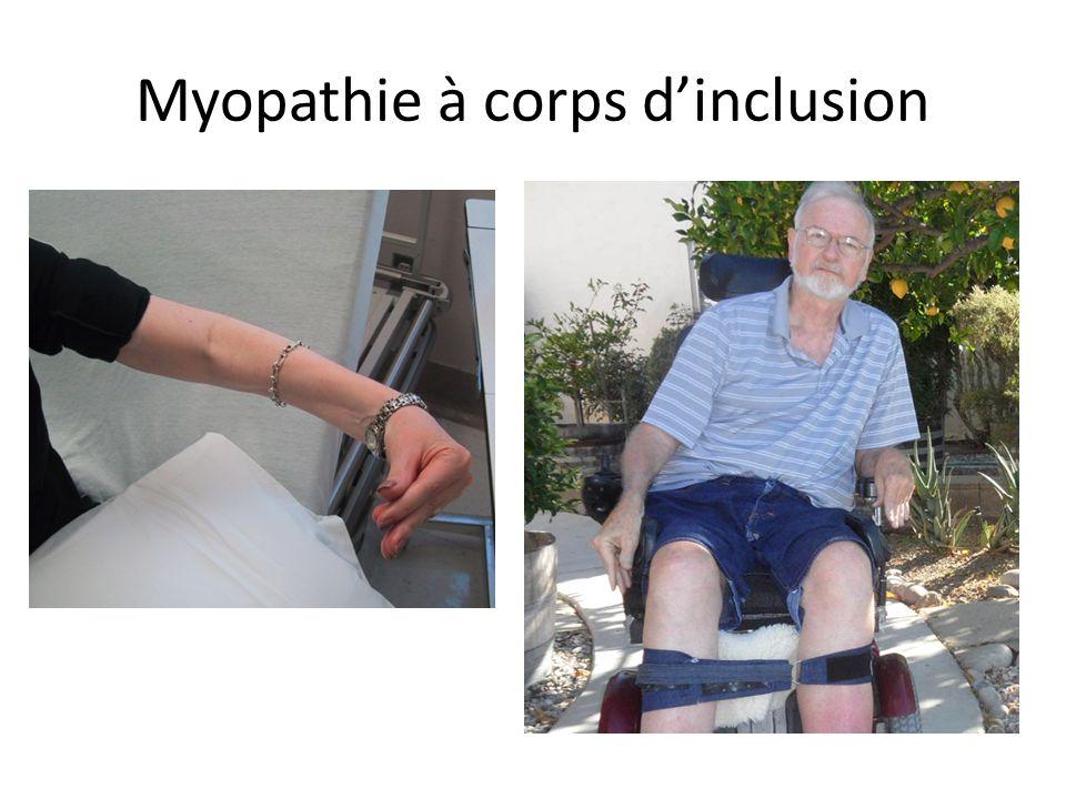 Myopathie à corps d'inclusion