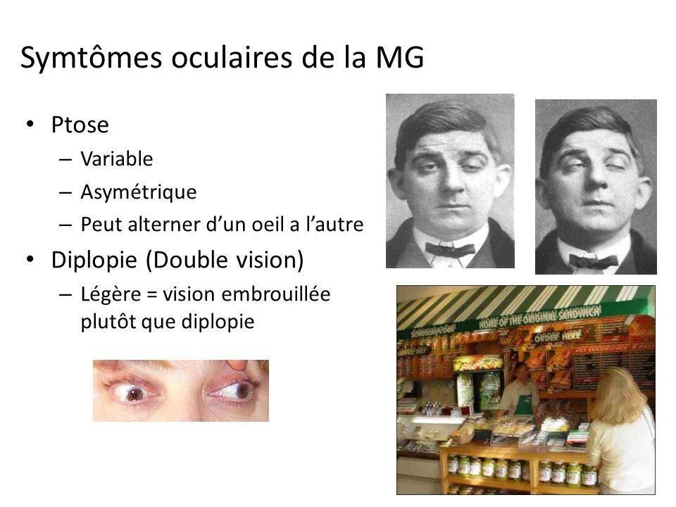 Symtômes oculaires de la MG