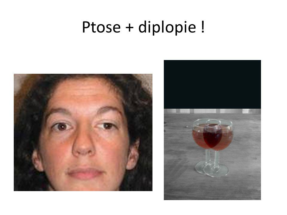 Ptose + diplopie !