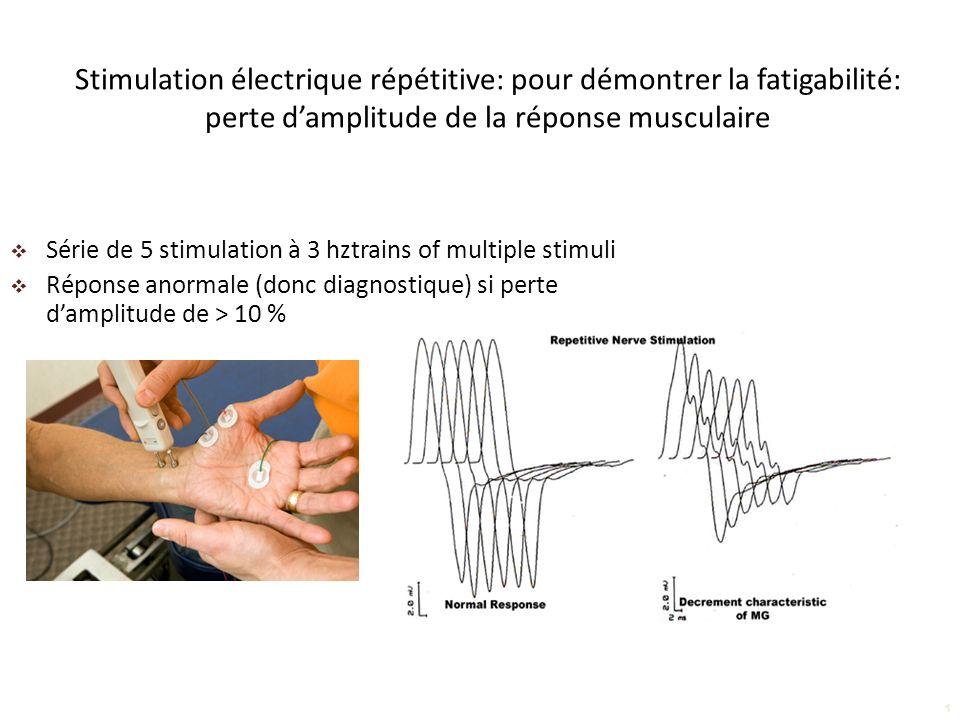 Stimulation électrique répétitive: pour démontrer la fatigabilité: perte d'amplitude de la réponse musculaire