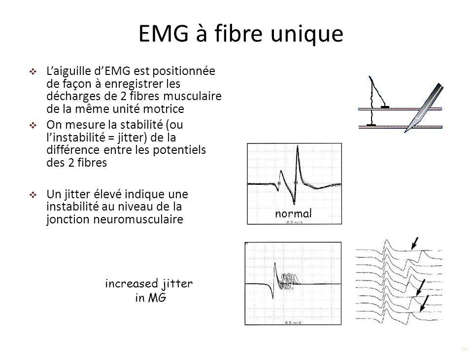 EMG à fibre unique L'aiguille d'EMG est positionnée de façon à enregistrer les décharges de 2 fibres musculaire de la même unité motrice.