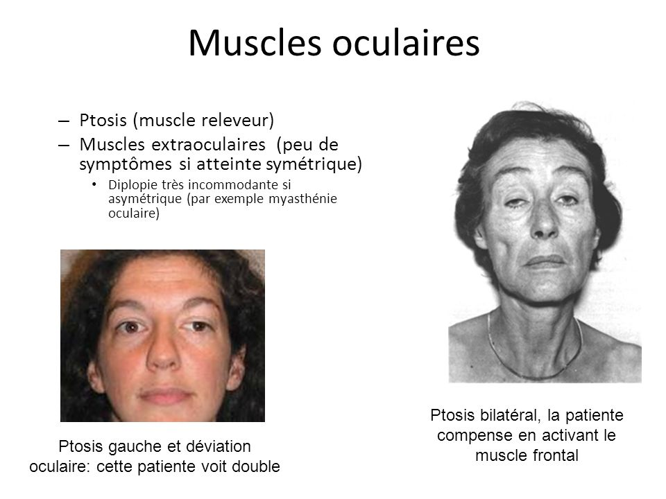 Muscles oculaires Ptosis (muscle releveur)