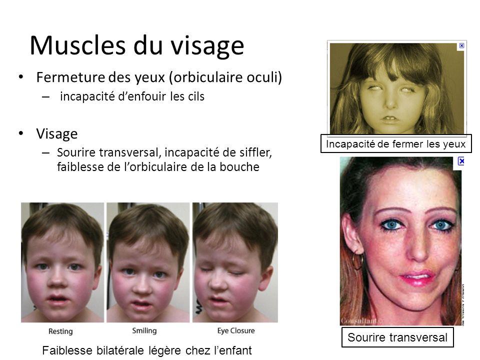 Muscles du visage Fermeture des yeux (orbiculaire oculi) Visage