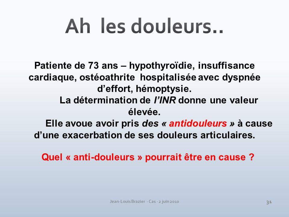 Ah les douleurs.. Patiente de 73 ans – hypothyroïdie, insuffisance cardiaque, ostéoathrite hospitalisée avec dyspnée d'effort, hémoptysie.