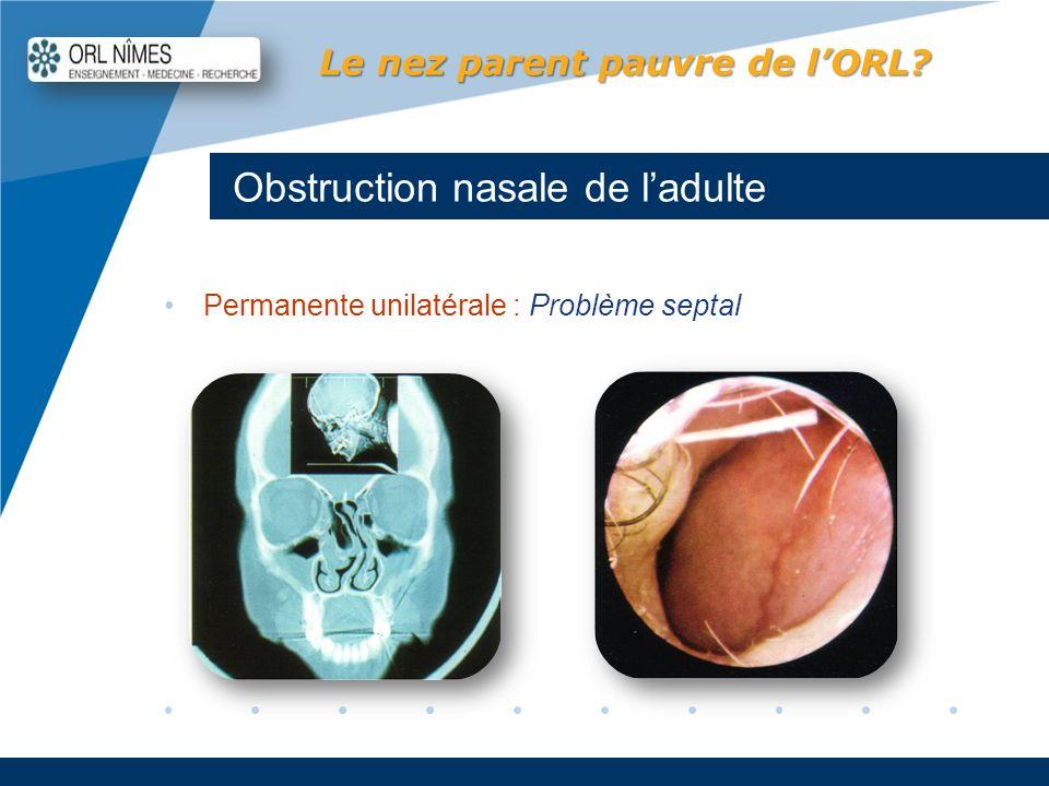 Obstruction nasale de l'adulte
