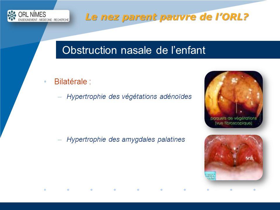 Obstruction nasale de l'enfant
