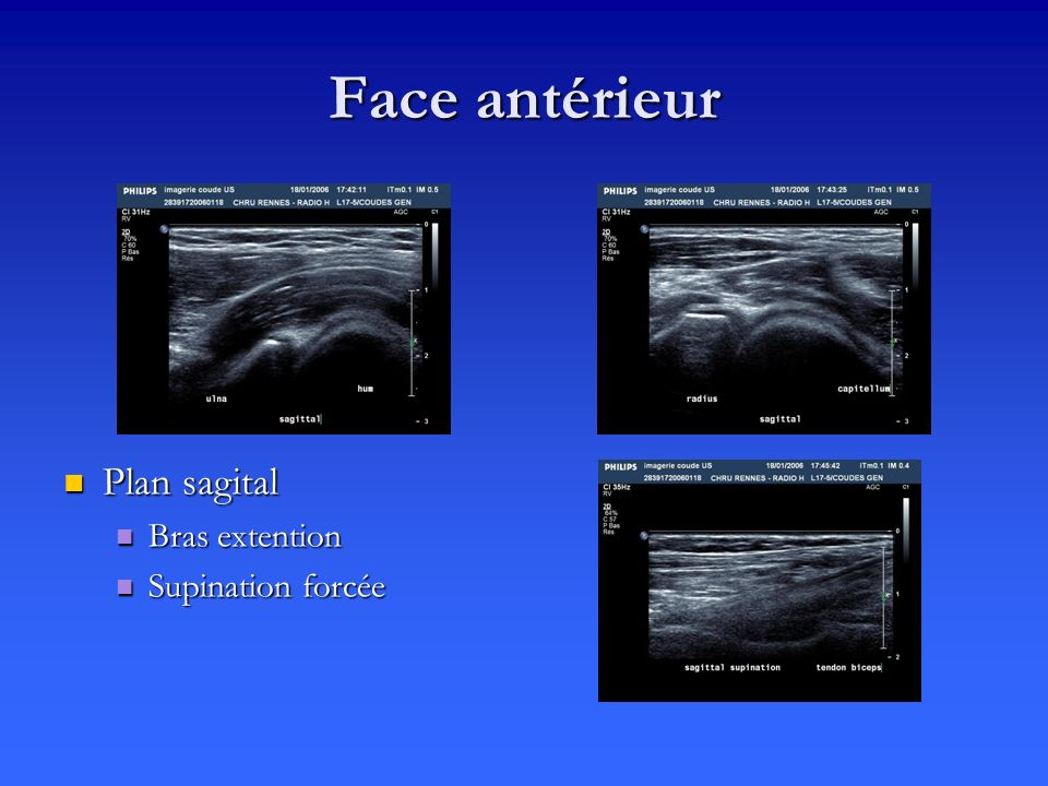 Face antérieur Plan sagital Bras extention Supination forcée