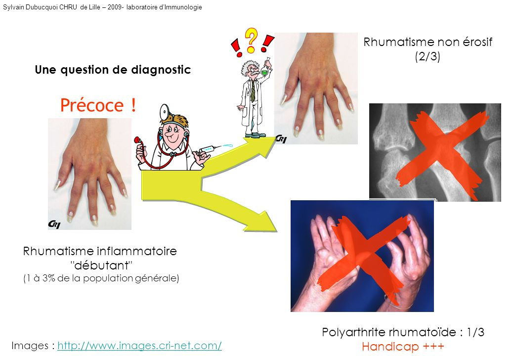 Une question de diagnostic