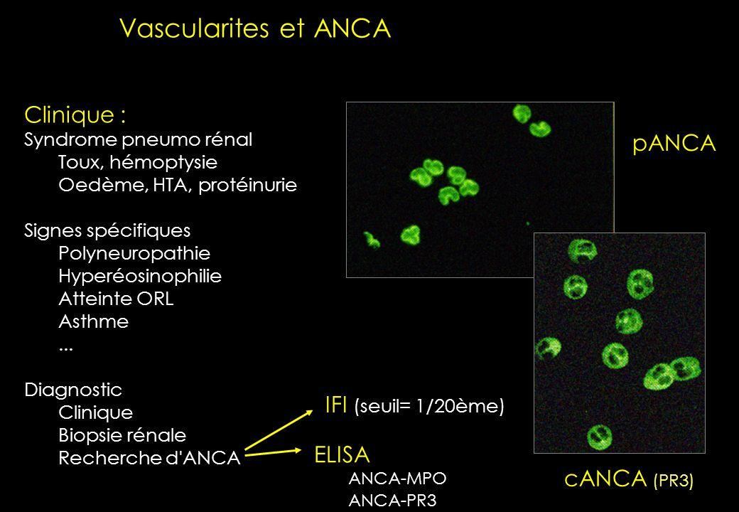 Vascularites et ANCA Clinique : pANCA IFI (seuil= 1/20ème) ELISA