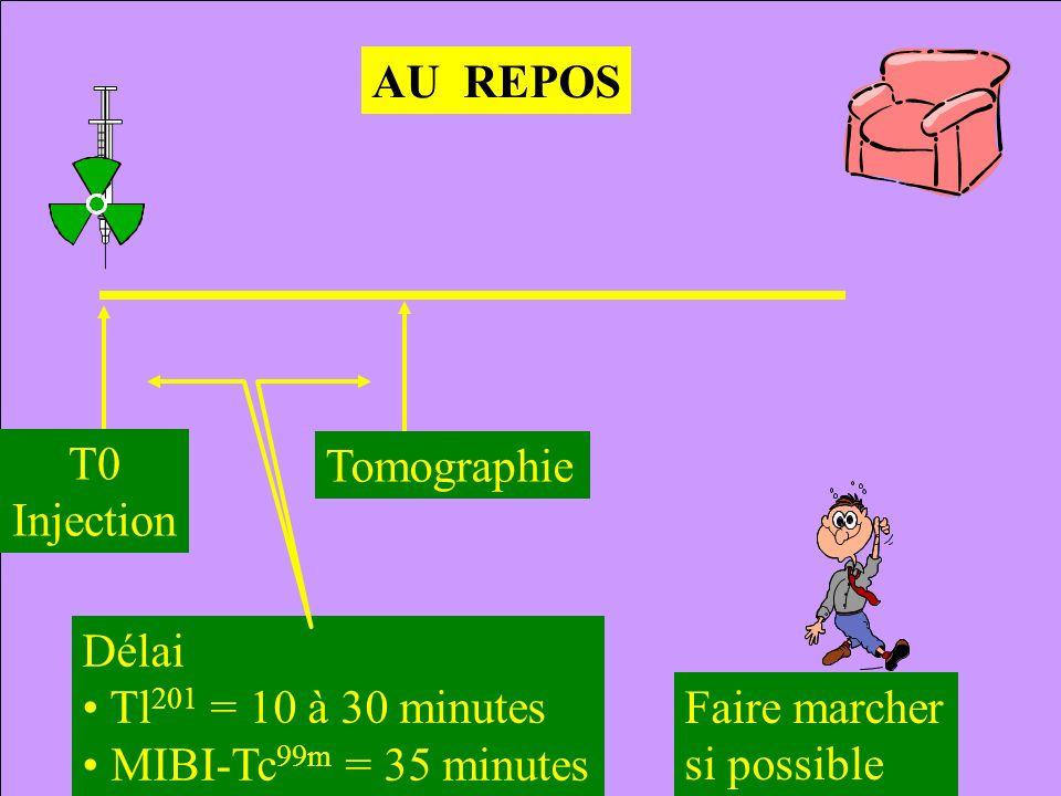 AU REPOS T0. Injection. Tomographie. Délai. Tl201 = 10 à 30 minutes. MIBI-Tc99m = 35 minutes.