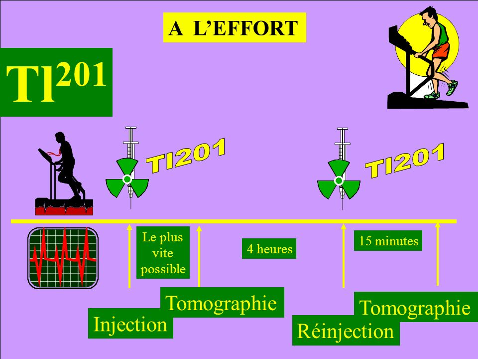 Tl201 A L'EFFORT Tomographie Tomographie Injection Réinjection Le plus